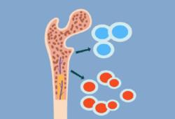 Br J Cancer:ITGA6表达下调增强多发性骨髓瘤的侵袭作用并促进其发展为浆细胞白血病