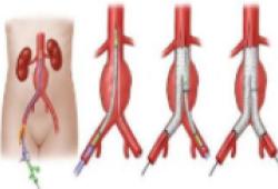 JACC:主动脉腔内修复术,不应对所有老年腹主动脉瘤患者说NO!