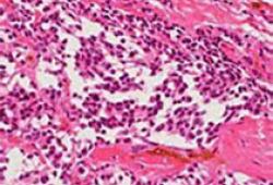 癌症早筛如何改变生命的轨迹?