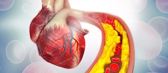 诊断不明确?2型心梗或非缺血性心肌损伤傻傻分不清