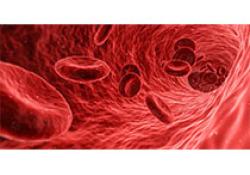 "JAMA:静脉注射泊洛沙姆188对镰状细胞贫血患者<font color=""red"">疼痛</font><font color=""red"">性</font><font color=""red"">血管</font><font color=""red"">闭塞</font>发作持续时间的影响"