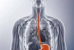 JGastroenterology:食管鳞状细胞癌浸润深度与内镜切除术后转移复发的风险之间的关系