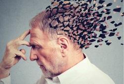 Alzheimer Dementia:锥体外系症状可有效预测痴呆风险