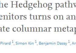 """<font color=""""red"""">Cell</font> <font color=""""red"""">Stem</font> <font color=""""red"""">Cell</font>:打破怀疑,发现食管癌相关机制"""