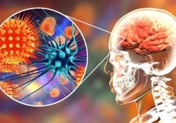 """Neurology:脑脊液生物标记物,可有效预测<font color=""""red"""">自身</font><font color=""""red"""">免疫</font><font color=""""red"""">性</font>脑炎"""