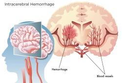 Neurology: 脑小血管疾病,可加剧脑内出血者的不良预后