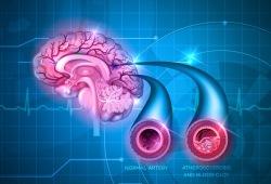 Neurology:多强化手臂锻炼,或有利于脑中风康复