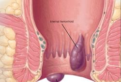 Gut重磅!全球近100万人研究推翻痔疮定义,史上首次确定痔疮找到原因