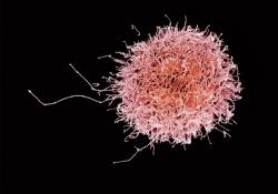 "NK细胞免疫<font color=""red"">疗法</font>惹争议,新型<font color=""red"">疗法</font>何去何从?"