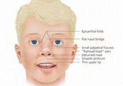 "Ear Nose Throat J:突发感音<font color=""red"">神经</font><font color=""red"">性</font>听力损失儿童的临床特征与内淋巴水肿的相关<font color=""red"">性</font>"