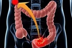 Lancet oncol:派姆单抗可显著改善MSI-H或dMMR的转移性结直肠癌患者的生活质量