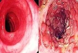 J Crohns Colitis:克罗恩病肛周瘘相关癌患者的特征及临床预后