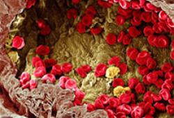 吃辣可降低34%心血管死亡风险,还可减肥、降压,甚至抗癌?