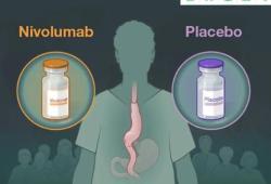 NEJM:Nivolumab辅助治疗方案用于晚期食管或胃食管交界癌患者III期临床研究获得成功