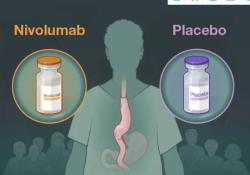 "NEJM:<font color=""red"">Nivolumab</font>辅助治疗方案用于晚期食管或胃食管交界癌患者III期临床研究获得成功"