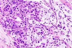 RET抑制剂TPX-0046治疗肿瘤,I/II期SWORD-1期研究已取得初步临床数据
