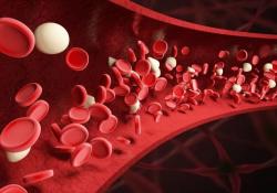 "Leukemia:免疫介导的获得性再生障碍性贫血患者的T细胞<font color=""red"">基因</font><font color=""red"">突变</font>分析"