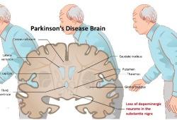 Neurology:干扰素信号抑制,不会干扰帕金森病风险或发病年龄