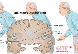 """Neurology:<font color=""""red"""">干扰</font><font color=""""red"""">素</font>信号抑制,不会<font color=""""red"""">干扰</font>帕金森病风险或发病年龄"""