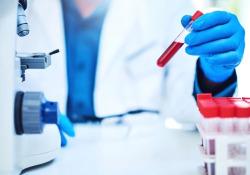 全球首款COVID-19干血斑检测法获FDA紧急使用特权