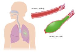中国成人支气管扩张症诊断与治疗 专家共识