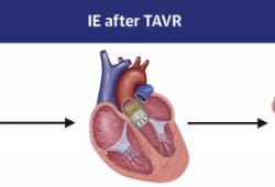 JACC:经导管主动脉瓣置换术后的感染性心内膜炎患者发生卒中的概率及危险因素