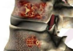 JCO:伊沙佐米+达雷木单抗+地塞米松用于多发性骨髓瘤体弱患者的疗效和安全性
