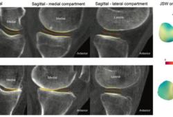 Radiology:负重CT在膝关节骨关节炎中的应用
