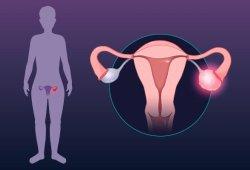新理论或可彻底改变子宫内膜异位症的治疗方法