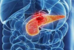 JCO:鲁卡帕利可有效治疗携带BRCA1/2或PALB2致病性突变的晚期胰腺癌