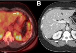 "<font color=""red"">Journal</font> of Nuclear Medicine: 18F-FDG PET / CT可发现尿道腺癌转移,指导分期和患者管理的改变"
