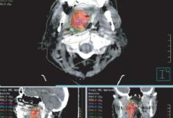 J Immunother Cancer:手术前予以放疗联合抗PD-1疗法可提高晚期头颈癌的病理缓解率