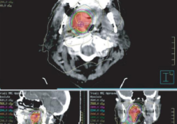 "J Immunother Cancer:手术前予以放疗联合抗PD-1疗法可提高晚期<font color=""red"">头颈</font><font color=""red"">癌</font>的病理缓解率"