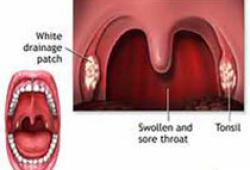 JCEM:牙周炎与糖尿病风险之间的相关性