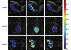 "Radiology:母体高氧状态对<font color=""red"">先天</font><font color=""red"">性</font>心脏病胎儿有何影响?"