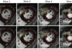 Radiology:三维深卷积神经网络使HCM心肌瘢痕自动定量成为可能