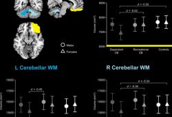 Translational Psychiatry:女性大麻成瘾者局部脑区体积更小