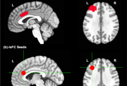 Translational Psychiatry:以认知控制网络为治疗目标的干预措施可有效缓解中老年重度抑郁患者症状