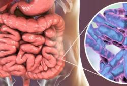 Gastroenterology:粪菌移植治疗艰难梭菌感染的患者长期安全性的风险