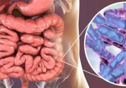 "Gastroenterology:粪<font color=""red"">菌</font>移植治疗艰难梭<font color=""red"">菌</font>感染的患者长期安全<font color=""red"">性</font>的风险"