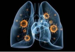 Cell Death Differ:lncRNA PFI调控SRSF1的表达及活性以预防肺纤维化的发生