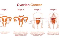 """Lancet:""""女性杀手""""卵巢癌人群筛查有必要吗?结果有点意外……"""