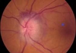 梅斯病例报告001|非动脉炎性前部缺血性视神经病变