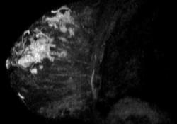 "JCO:早期定量PET-<font color=""red"">CT</font>检查或可预测乳腺癌靶向治疗的反应性"