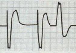 "Heart Rhythm:不同<font color=""red"">新型</font>起搏<font color=""red"">技术</font>的心室除极差异"