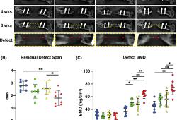 全身性DKK1中和作用增强人类脂肪来源的干细胞介导的骨修复