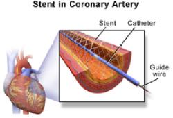 "Lancet:在PCI术后防血栓的pk中,""神药""阿司匹林败给了氯吡格雷?!"