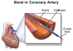 "Lancet:在<font color=""red"">PCI</font>术后防血栓的pk中,""神药""阿司匹林败给了氯吡格雷?!"