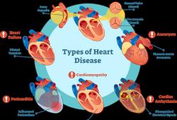 Lancet:诺和诺德公司IL-6抑制剂对动脉粥样硬化高危患者炎症水平的影响