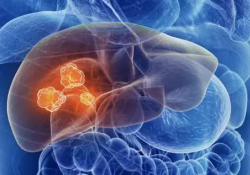 "Br J Cancer:<font color=""red"">特</font>泊替尼tepotinib与索拉<font color=""red"">非</font>尼sorafenib对晚期肝细胞癌患者的治疗对比"